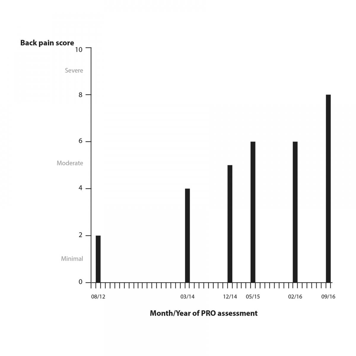 Graphic showing a patient's back pain score over time as a bar graph, with a bar at several places indicating the month/year of a PRO assessment.