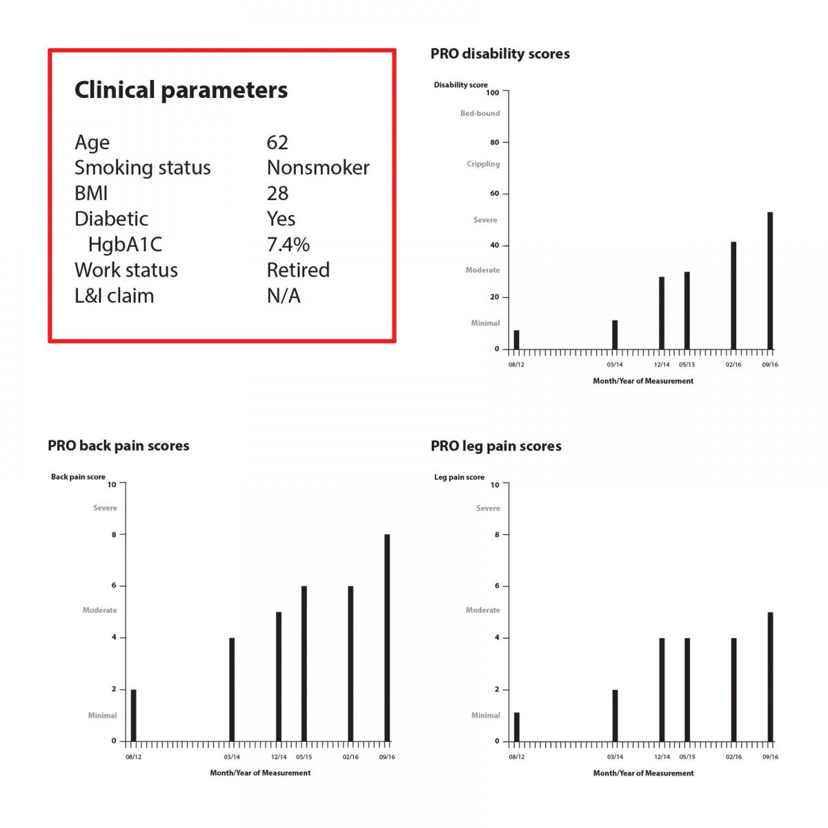 Graphic showing a patient's clinical parameters such as age, smoking status, etc. alongside bar charts showing their disability, back pain, and leg pain scores.